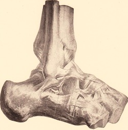 Ankle external ligaments, in ankle sprain.